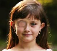 Закупорка слезного протока у детей — повод обследования у офтальмолога