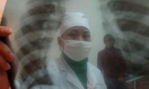 В борьбе с туберкулёзом равнодушных нет