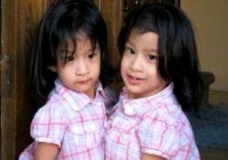 В ожидании чуда: хирурги попытаются разделить сиамских близнецов