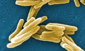 Смертность от туберкулеза в России снизилась за год на семь процентов