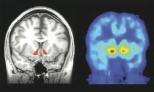 Обнаружен механизм появления эйфории при приеме алкоголя