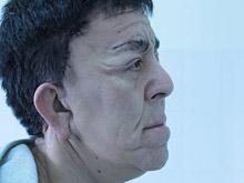 Врачи омолодили пациента, чей организм аномально быстро стареет