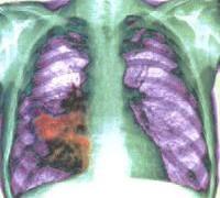 Туберкулез и рак легких связаны генетически