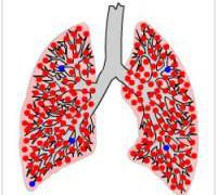 Ученые выявили истинную причину развития устойчивой формы туберкулеза