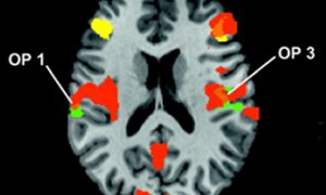 У мозга обнаружили способность «осязать» метафоры
