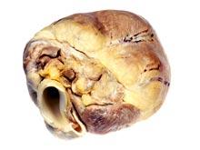 Сердце способно сжигать жировые отложения, показал эксперимент