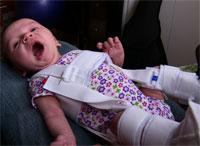 Ультразвук уверенно диагностирует дисплазию тазобедренного сустава в возрасте 6 месяцев