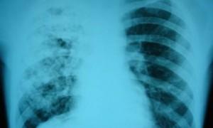 Генетический подход к диагностике туберкулеза повышает эффективность лечения
