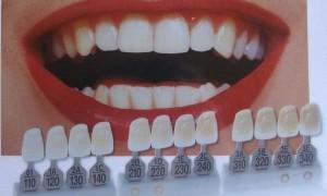 Восемь мифов о протезировании зубов