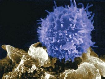 Американцы назвали миндалины источником Т-лимфоцитов