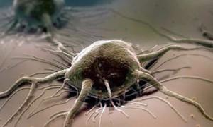 Что влияет на появление онкологии