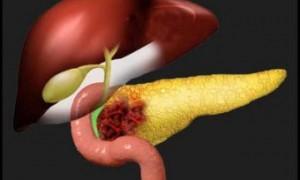 Больным неоперабельным раком поджелудочной помогла необратимая электропорация
