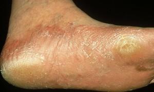 Микоз стоп: причины, симптомы, лечение, профилактика