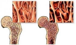 Избыток витамина E вызвал остеопороз у мышей