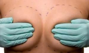 Вакцина уменьшила количество рецидивов рака груди почти в два раза
