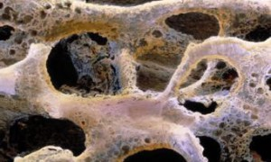 NASA разработало метод ранней диагностики остеопороза