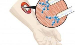 Разработана электронная схема для управления сокращением мышц