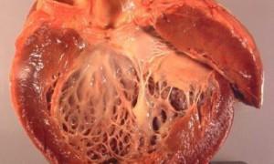 Открыт механизм возникновения послеродовой сердечной недостаточности