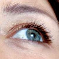 Слепоту можно вылечить с помощью обычной глазной инъекции