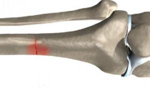 Наночастицы помогли восстановить костную ткань