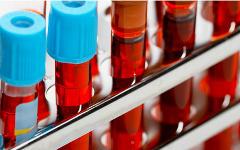 Наличие аллергии уменьшит риск развития опухоли мозга