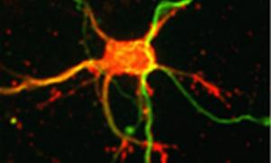 Кесарево сечение негативно влияет на развитие головного мозга