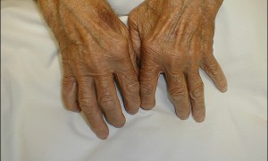 Новое лекарство победит артрит?