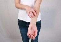 6 советов, как уменьшить кожный зуд