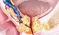Исследователи открыли действующий механизм мощной химиотерапии для лечения рака простаты
