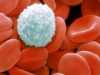 Новый метод лечения болезни Гоше испытали на перепрограммированных стволовых клетках