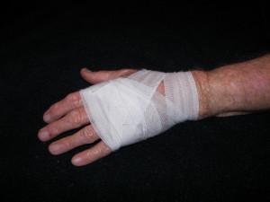 Местное применение симвастатина способствует заживлению ран при диабете