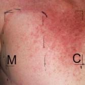 Опробован новый способ борьбы с поражением кожи при радиотерапии