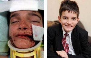 Разорванное лицо ребенка спас таинственный парамедик
