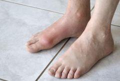 О здоровье расскажут ноги: 5 симптомов
