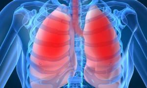 ХОБЛ не является самостоятельным фактором риска рака легкого