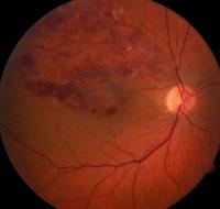 Молодой ученый помог определить причину широко распространенной глазной болезни