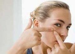 Обсуждаются новые методы лечения угрей