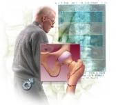 Висцеральный жир – фактор риска развития остеопороза у мужчин