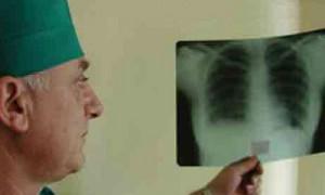 В учебных и медучреждениях региона допустили случаи заражения туберкулезом