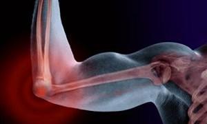 Неэффективность методов лечения «теннисного локтя»
