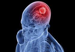 Клетки жира – новое «средство доставки» в терапии злокачественных опухолей мозга