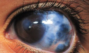 Фармацевтическая отрасль продолжает бороться с глаукомой