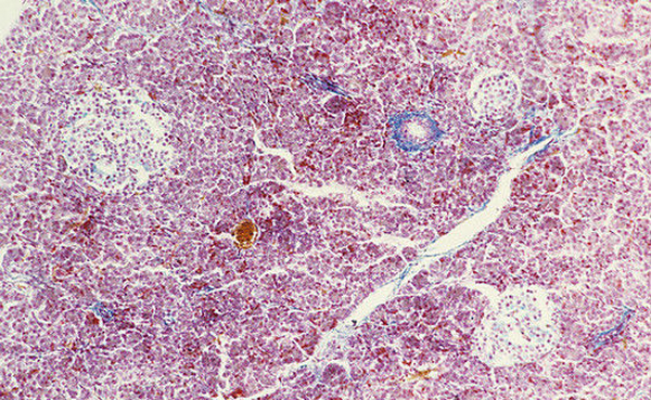 saharniy-diabet-i-spermatozoidi