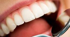 Когда показано шинирование зубов