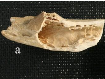 У неандертальца из хорватской пещеры нашли современную опухоль кости