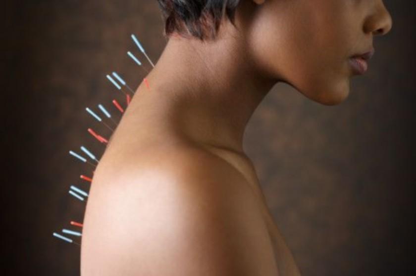 Как действует иглоукалывание на тело человека