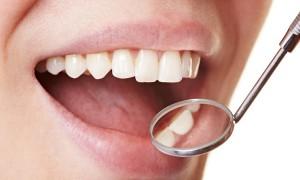 Лечение кровоточивости десен у стоматолога может привести к инсульту