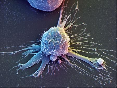 Стволовые клетки позволяют диабетикам отказаться от инсулина