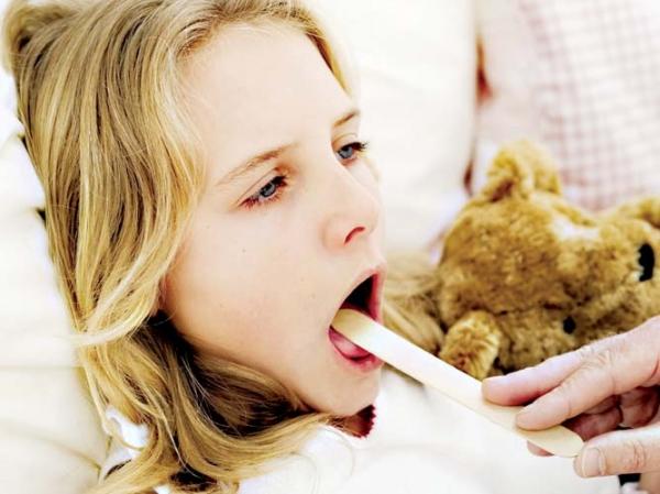 Виды ангины: симптомы и лечение