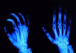Плюсы и минусы Рентгенографии